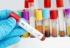 Chile: El país en Latinoamérica donde más aumentan los casos de VIH