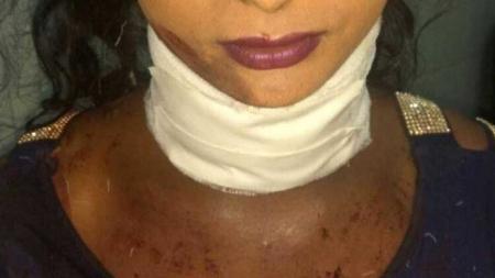 India: Niegan atención medica a mujer trans que le cortaron la garganta