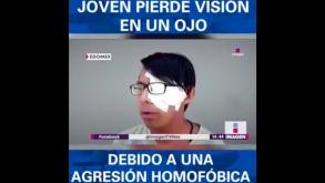 Mexico: Agresiones homofóbicas atemorizan a pareja gay