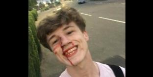 Se toma un selfie luego de un ataque homofobico